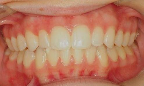 Direct-Composite-Veneer-After-Image