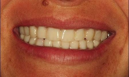 Upper-And-Lower-Complete-Dentures-in-Azle-Texas-After-Image