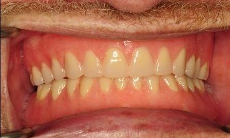 Upper-Complete-Denture-And-Lower-Implant-Retained-Overdenture-After-Image