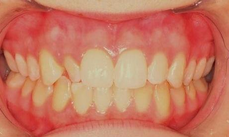 Direct-Composite-Veneer-Before-Image